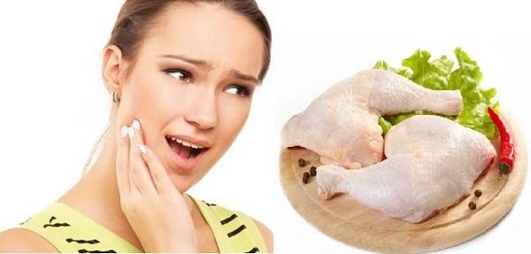 Một số thực phẩm nên kiêng sau khi nhổ răng