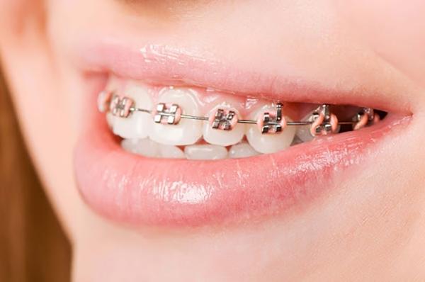 Các Loại Mắc Cài Niềng Răng Trong Nha Khoa Thẩm Mỹ - ảnh 2