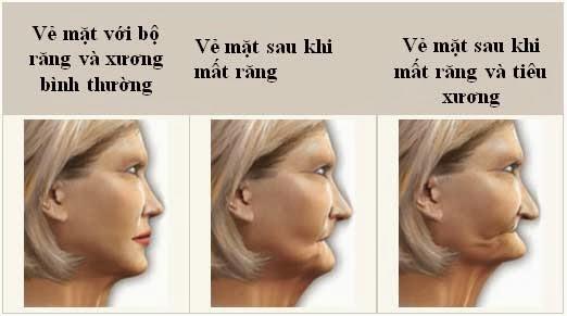 Bị Mất Răng Nên Trồng Răng Sứ Hay Cấy Ghép Implant? - ảnh 1