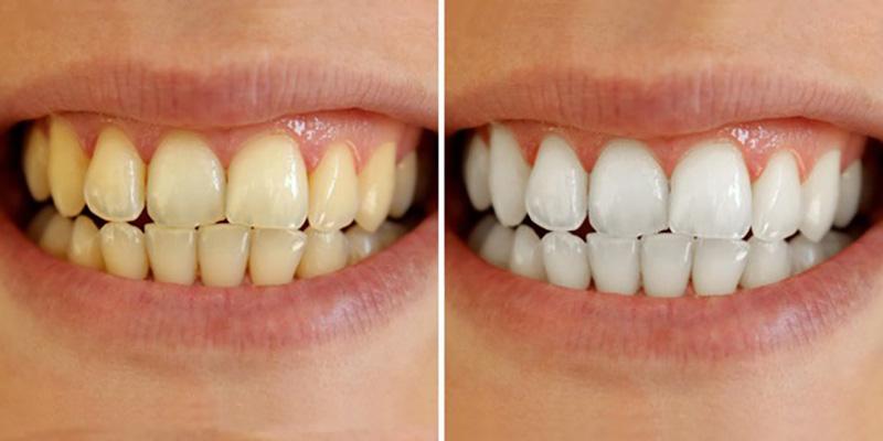 Tẩy Trắng Răng Có Tốt Không? Lưu Ý Trước Và Sau Khi Tẩy Trắng Răng - ảnh 2