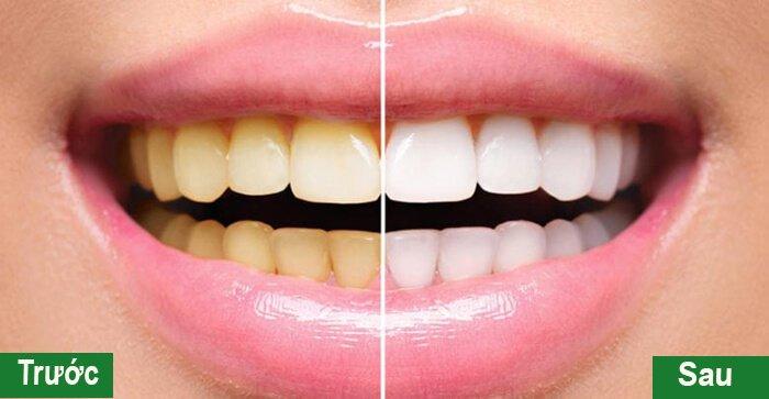 Tẩy Trắng Răng Có Tốt Không? Lưu Ý Trước Và Sau Khi Tẩy Trắng Răng - ảnh 4