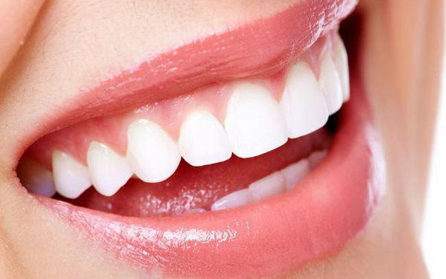 Tẩy Trắng Răng Có Tốt Không? Lưu Ý Trước Và Sau Khi Tẩy Trắng Răng - ảnh 6