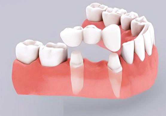 Bị Mất Răng Nên Trồng Răng Sứ Hay Cấy Ghép Implant? - ảnh 2