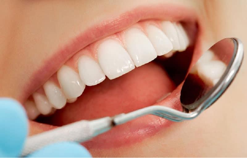 Những Điều Cần Biết Trước Khi Làm Răng Sứ Thẩm Mỹ - ảnh 3