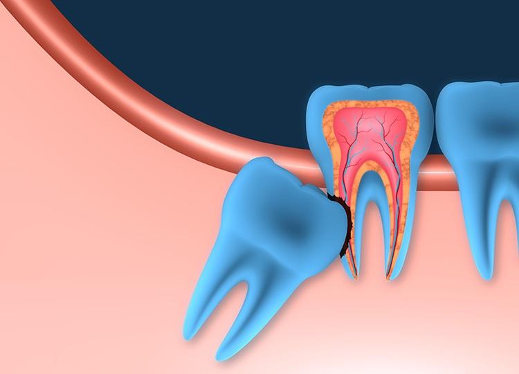 Vì sao nên nhổ răng khôn? Quy trình, chi phí nhổ răng khôn - ảnh 1