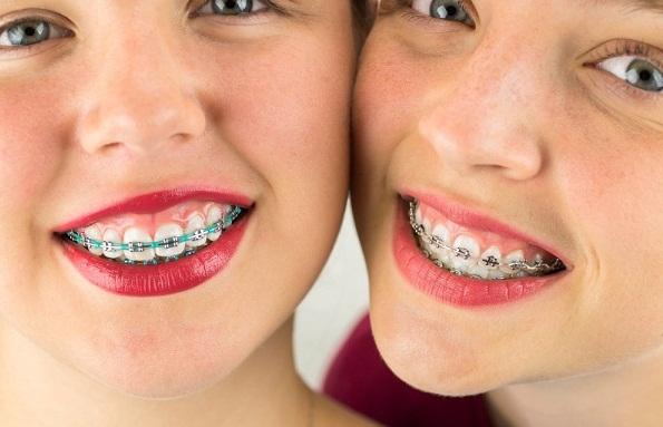 Niềng răng hô là gì? Chi phí niềng răng hô ở địa chỉ uy tín