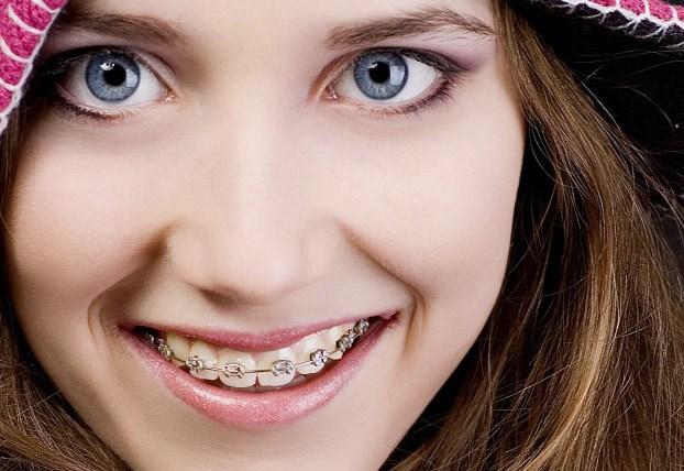 Niềng răng là gì? Những phương pháp niềng răng phổ biến nhất