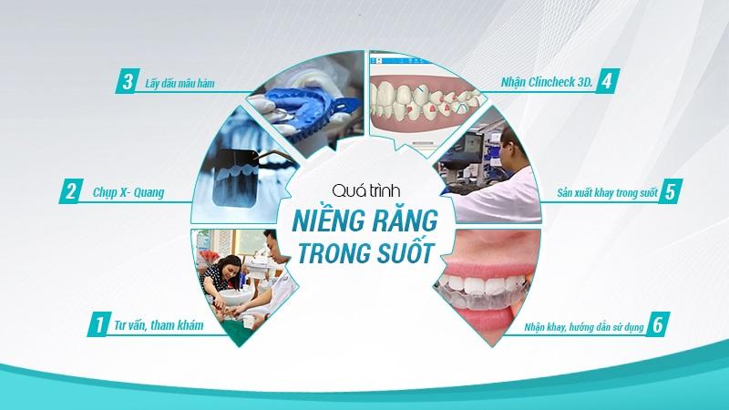 Niềng răng Invisalign và những điều cần biết năm 2021