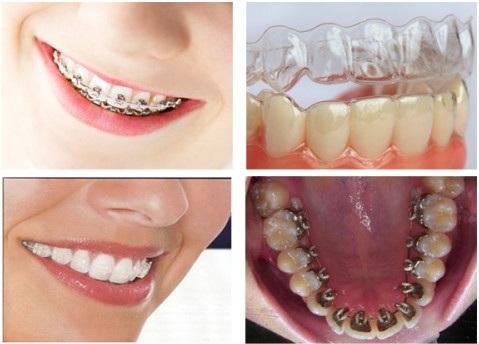 Có nên niềng răng không?