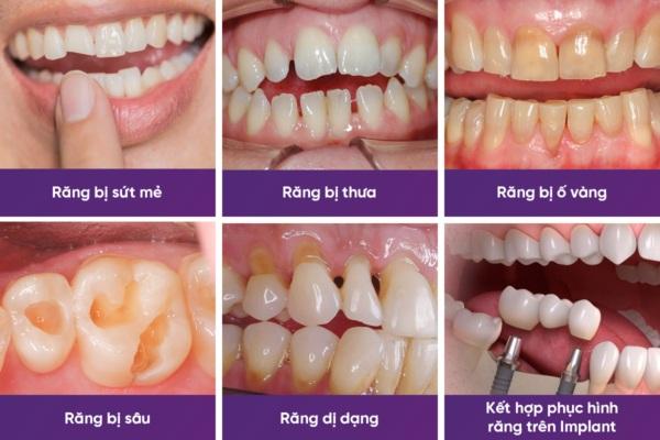 đối tượng bọc răng sứ