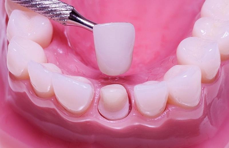Mô hình răng sứ Katana