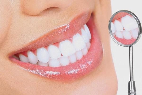 Làm răng sứ mất bao lâu
