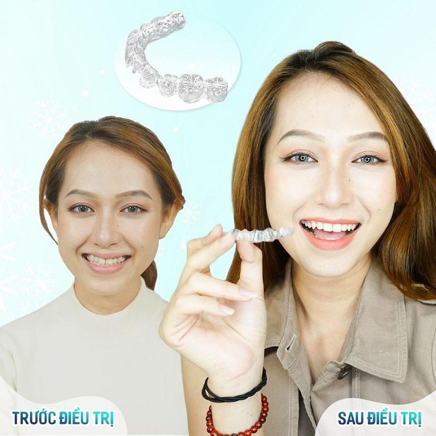 30 tuổi có niềng răng được không? Và Niềng Răng Loại Nào Tốt Cho Người 30 Tuổi 7