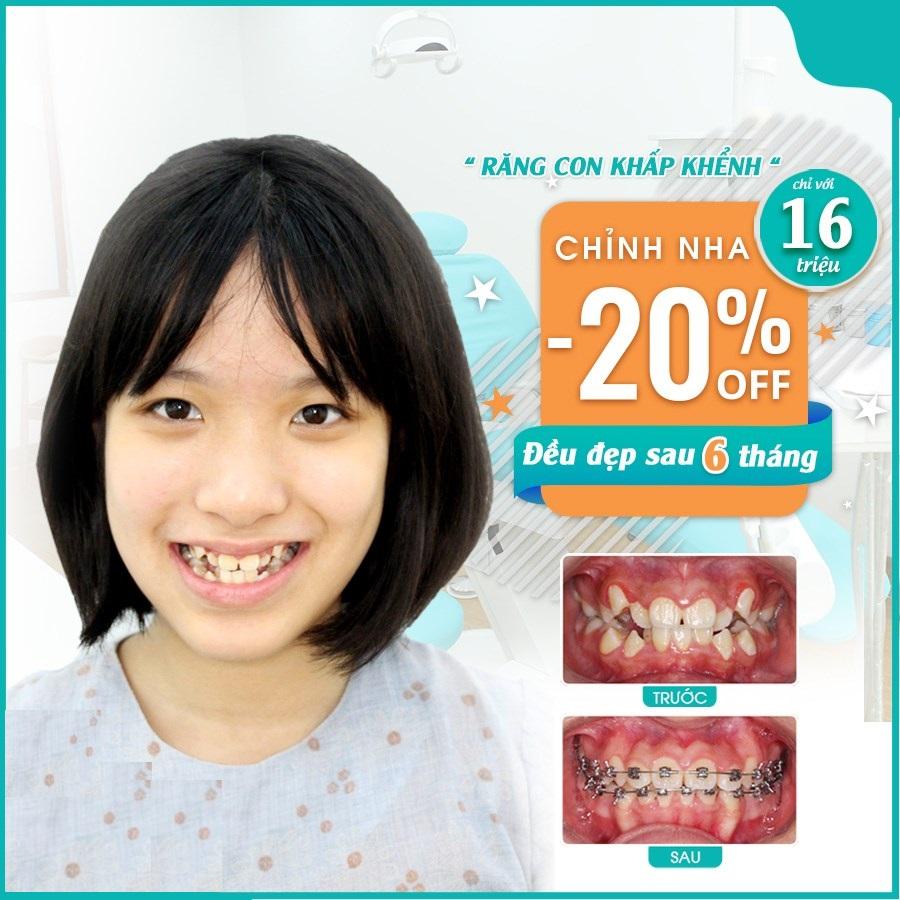 Niềng răng loại nào tốt và hiệu quả cho bạn? Bảng so sánh các loại niềng răng