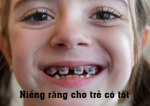 Niềng răng cho trẻ em ở đâu tốt? Cách chọn bác sĩ chỉnh nha cho trẻ em