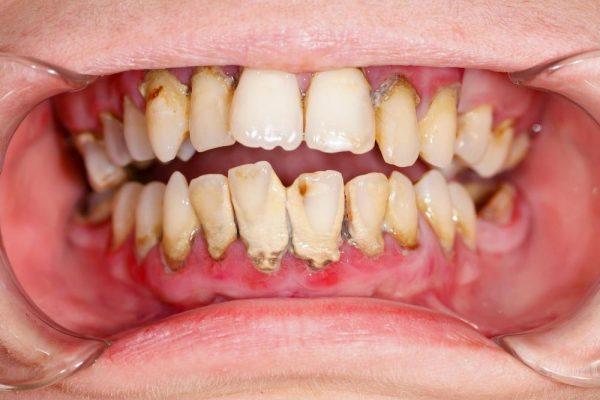 Lấy Cao Răng Là Gì? Tại Sao Phải Lấy Cao Răng? - ảnh 4