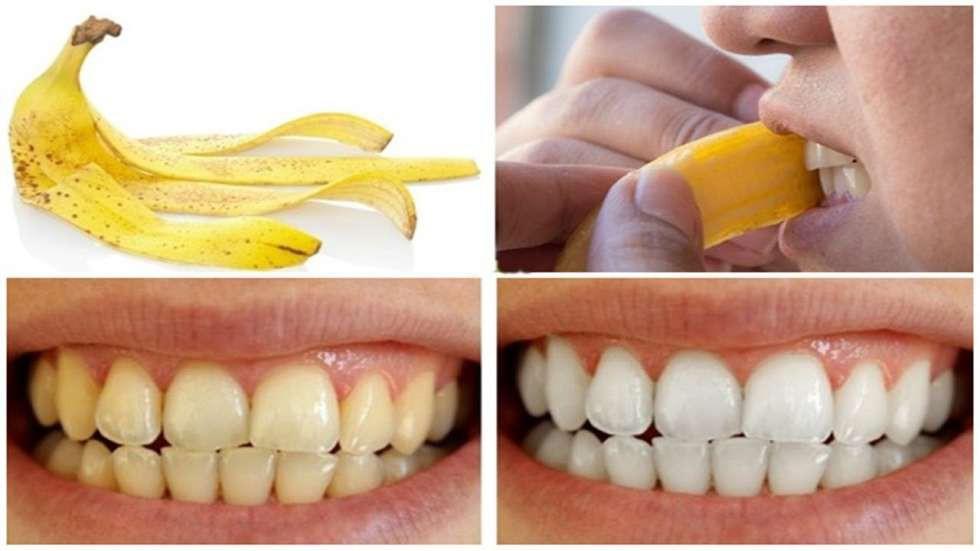 Răng Vàng ố - Nguyên Nhân Gây Ra Và Cách Điều Trị Hiệu Quả Nhất - ảnh 3