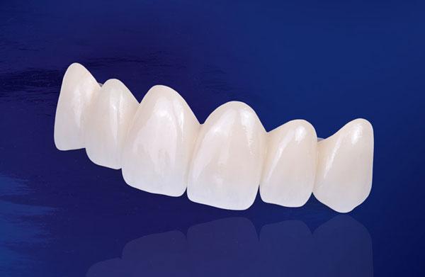 Răng Sứ DDBIO Là Gì? Bọc Răng Sứ DDBIO Có Tốt Không? - ảnh 1