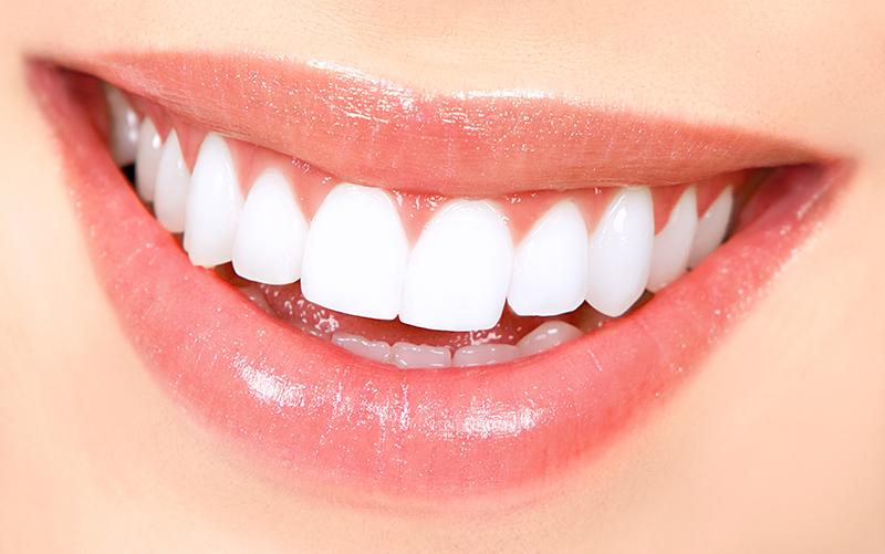 Răng Sứ HT Smile Là Gì? Những Ưu Điểm Vượt Trội Của Răng Sứ HT Smile - ảnh 4