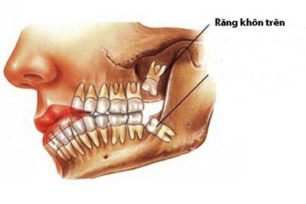 Vì sao nên nhổ răng khôn? Quy trình, chi phí nhổ răng khôn - ảnh 5