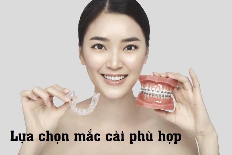 Đeo niềng răng bao lâu phụ thuộc loại mắc cài bạn lựa chọn