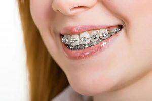 Răng hô, nguyên nhân và những thông tin cần biết về niềng răng hô