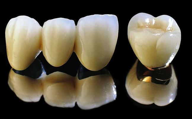 Răng Sứ Titan Là Gì? Bọc Răng Sứ Titan Có Bền Và Đẹp Không? - ảnh 1