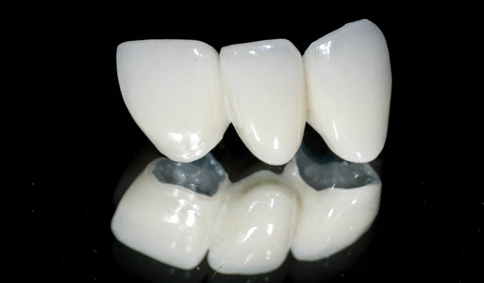 Răng Sứ Titan Là Gì? Bọc Răng Sứ Titan Có Bền Và Đẹp Không? - ảnh 2