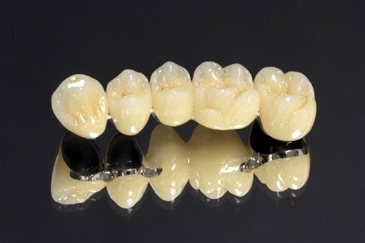 Răng Sứ Titan Là Gì? Bọc Răng Sứ Titan Có Bền Và Đẹp Không? - ảnh 3