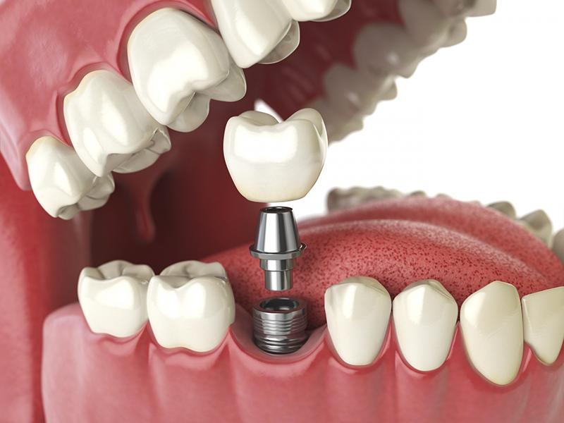 Trồng Răng Implant Là Gì? Có Tốt Và An Toàn Không? - ảnh 1