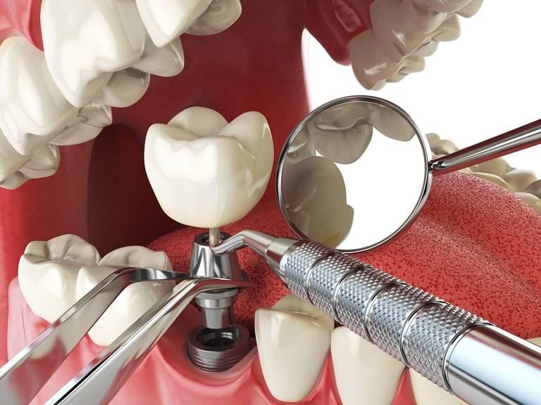 Trồng Răng Implant Là Gì? Có Tốt Và An Toàn Không? - ảnh 2