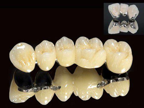 Bọc răng sứ loại nào tốt nhất hiện nay? - ảnh 2