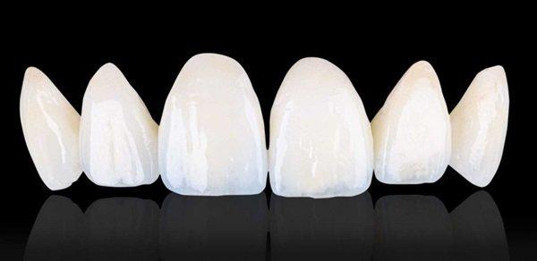 Bọc răng sứ loại nào tốt nhất hiện nay? - ảnh 3