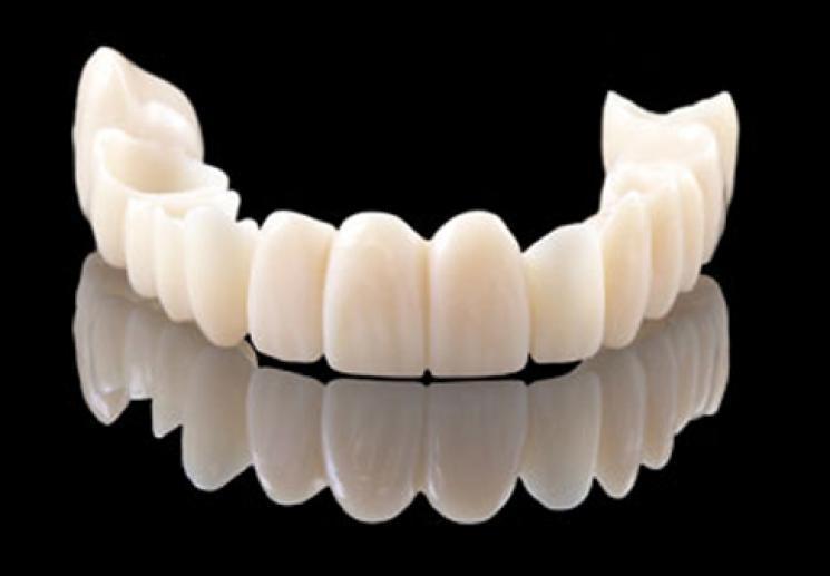 Bọc răng sứ loại nào tốt nhất hiện nay? - ảnh 4