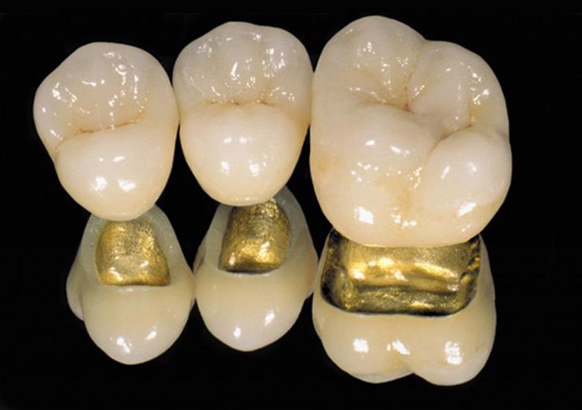 Bọc răng sứ loại nào tốt nhất hiện nay? - ảnh 5