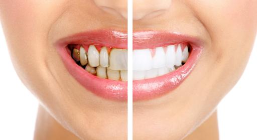 Bọc răng sứ loại nào tốt nhất hiện nay? - ảnh 6