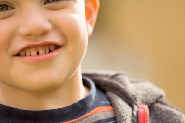 Độ tuổi niềng răng thích hợp nhất là khi nào? Có giới hạn tuổi không?