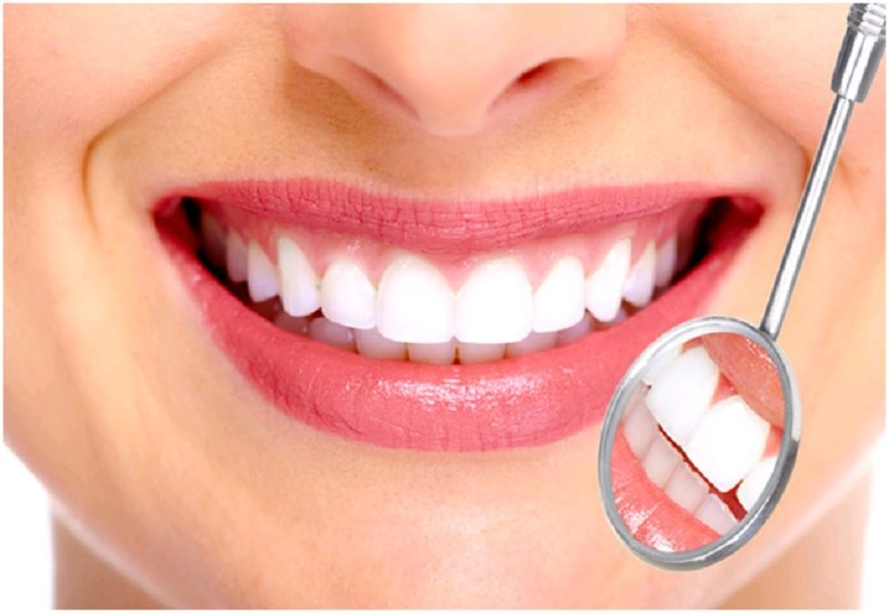 Răng Sứ Thẩm Mỹ Là Gì? Những Điều Cần Biết Trước Khi Bọc Răng Sứ - ảnh 2