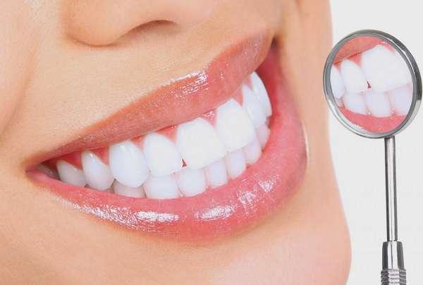 Răng Sứ Thẩm Mỹ Là Gì? Những Điều Cần Biết Trước Khi Bọc Răng Sứ - ảnh 3