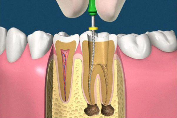 Tại Sao Nên Lấy Tủy Răng? Lấy Tủy Răng Có Tốt Và An Toàn Không? - ảnh 1