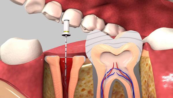 Tại Sao Nên Lấy Tủy Răng? Lấy Tủy Răng Có Tốt Và An Toàn Không? - ảnh 3