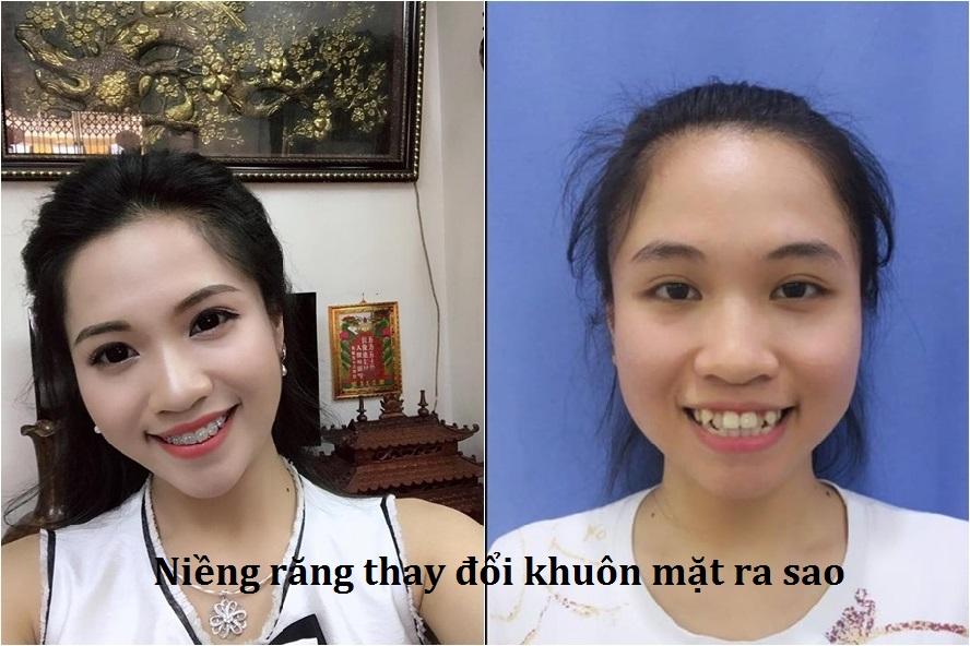 Niềng răng có làm thay đổi khuôn mặt không? Sẽ thay đổi như thế nào? anh1
