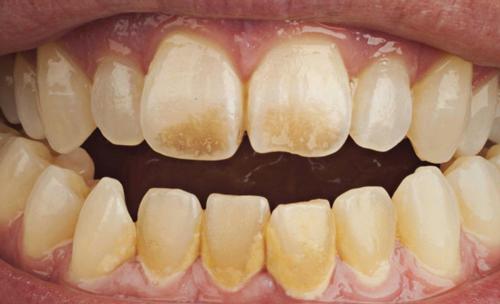 Răng Vàng ố - Nguyên Nhân Gây Ra Và Cách Điều Trị Hiệu Quả Nhất - ảnh 1