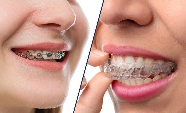 Niềng Răng Có Làm Răng Yếu Đi Không? Biểu Hiện Bình Thường Khi Niềng Răng