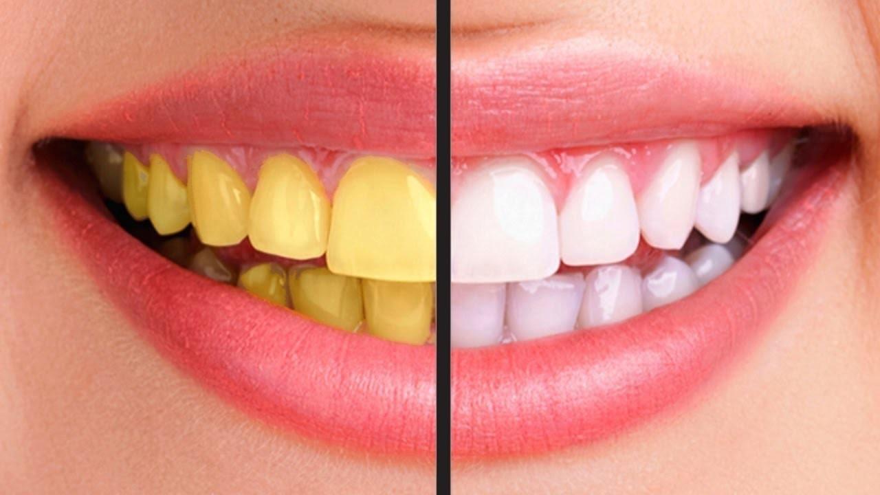 Răng Vàng ố - Nguyên Nhân Gây Ra Và Cách Điều Trị Hiệu Quả Nhất - ảnh 5