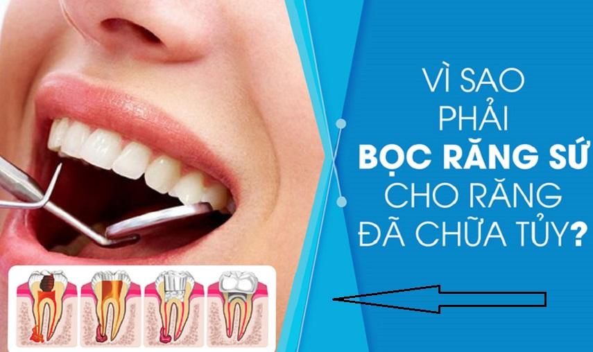 Tại Sao Nên Lấy Tủy Răng? Lấy Tủy Răng Có Tốt Và An Toàn Không? anh8