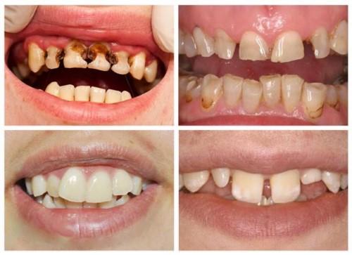 Răng xấu – Nguyên nhân và các cách khắc phục hiệu quả nhất - ảnh 1