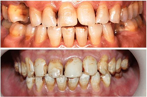 Răng xấu – Nguyên nhân và các cách khắc phục hiệu quả nhất - ảnh 2