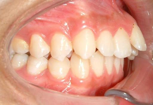 Răng xấu – Nguyên nhân và các cách khắc phục hiệu quả nhất - ảnh 3