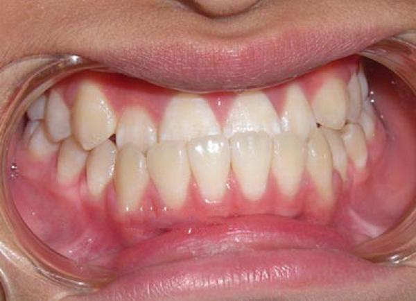 Răng xấu – Nguyên nhân và các cách khắc phục hiệu quả nhất - ảnh 4